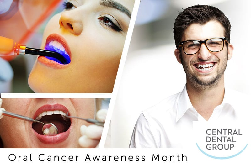 Oral Cancer Awareness Month - Dr  Jordan Soll