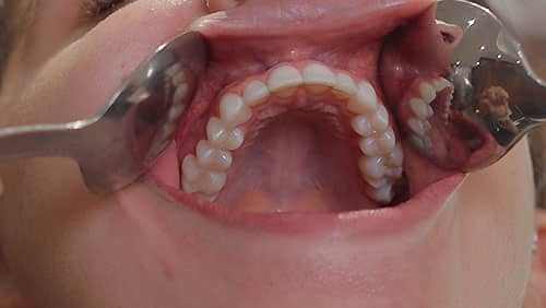 Upper Teeth (occlusal)